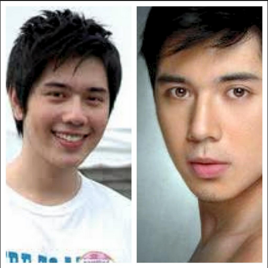 Plastic surgery gone wrong: Filipino model's face ruined ...